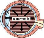 A zöldhályog (Glaukóma) 1.