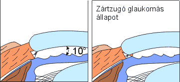 zartzugu-galukoma