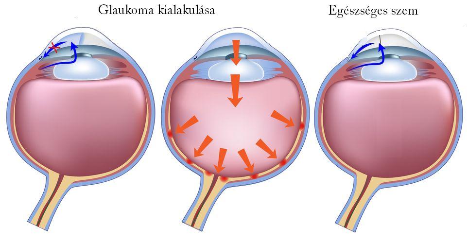 Glaukóma (zöld hályog) és a szemnyomás mérése